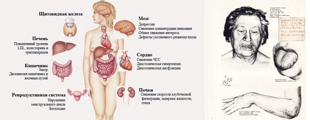 Рис. 4. Симптомы и проявления гипотиреоза