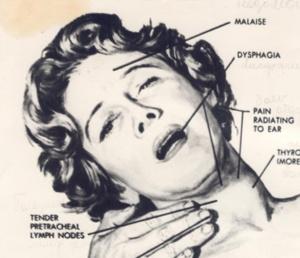 Рис. 6. Клиническая картина при подостром тиреоидите
