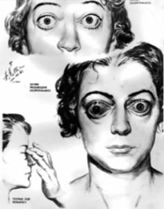 Рис. 7. Клиническая картина офтальмопатии