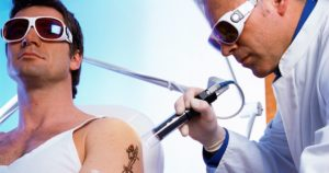 Лазерное удаление татуировок